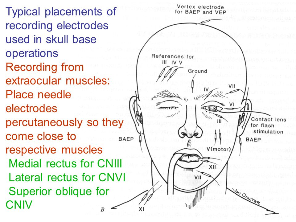 Typical placements of recording electrodes used in skull base operations Recording from extraocular muscles: Place needle electrodes percutaneously so they come close to respective muscles Medial rectus for CNIII Lateral rectus for CNVI Superior oblique for CNIV