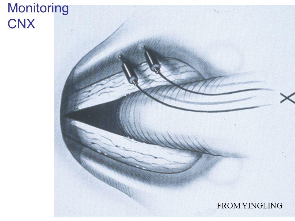 FROM YINGLING Monitoring CNX