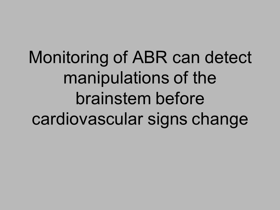 Monitoring of ABR can detect manipulations of the brainstem before cardiovascular signs change