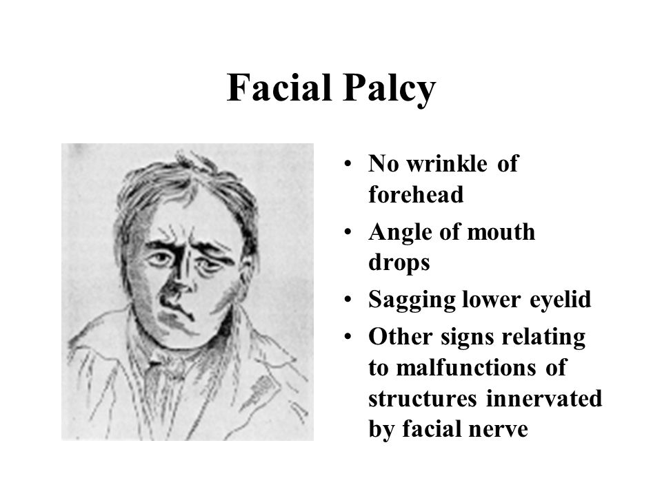 Facial Nerve Comes out from stylomastoid foramen Five branches –Temporal –Zygomatic –Buccal –Mandibular –Cervical