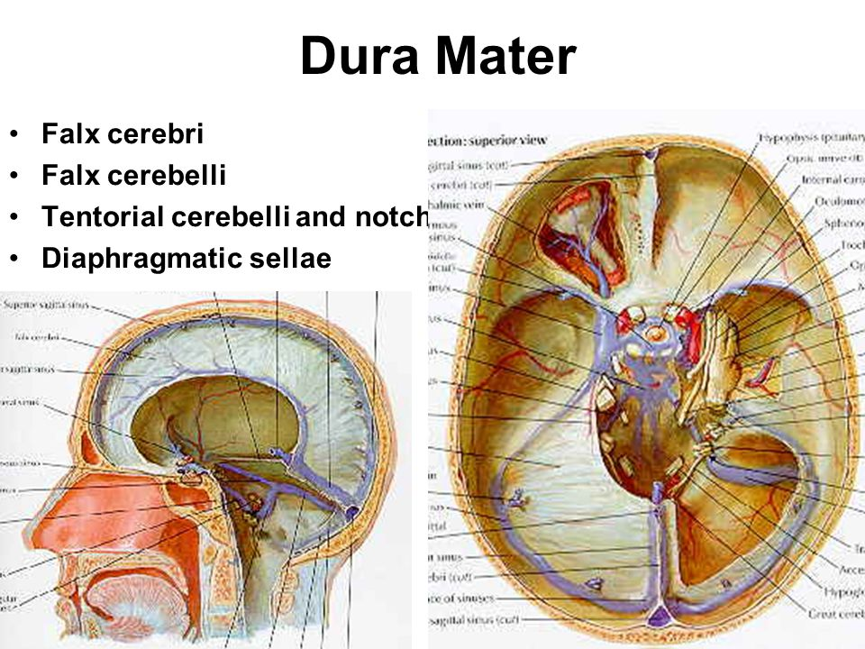 Dura Mater Outer and inner layers –position of the middle meningeal artery