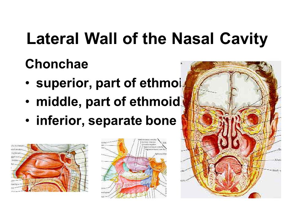 The Nasal Region Nostrils Vestibule Nasal cavity Choanae Nasal septum –Cartilage, septal cartilage –Bone perpendicular plate of ethmoid vomer maxillar