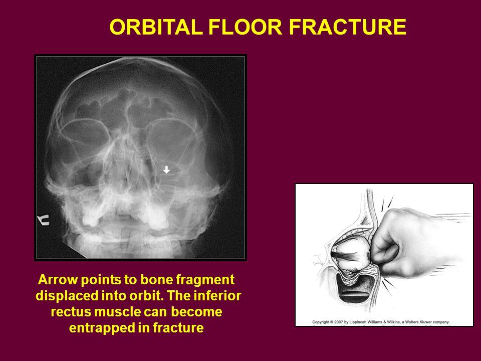 ORBITAL FLOOR FRACTURE Arrow points to bone fragment displaced into orbit.