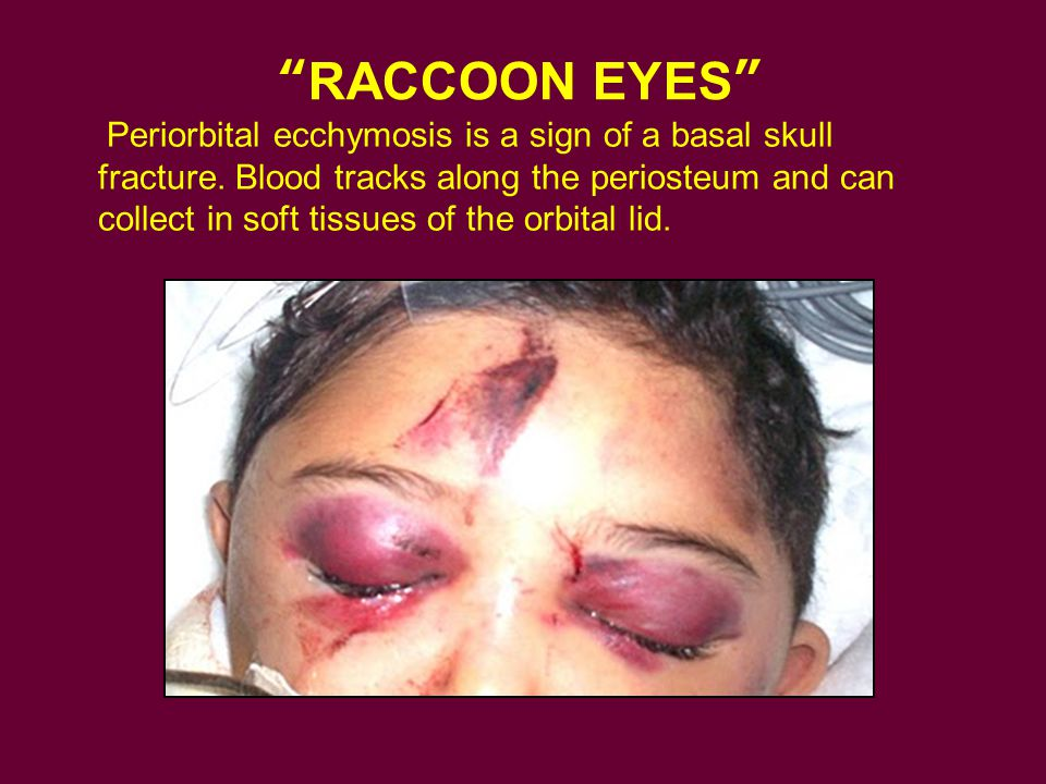RACCOON EYES Periorbital ecchymosis is a sign of a basal skull fracture.