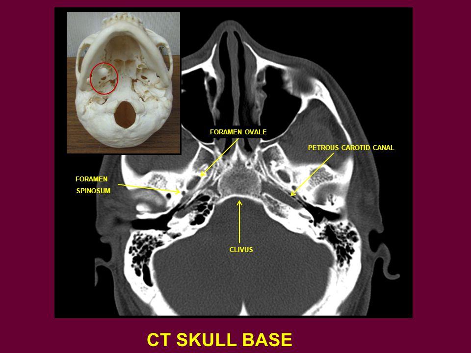 CT SKULL BASE FORAMEN OVALE FORAMEN SPINOSUM PETROUS CAROTID CANAL CLIVUS