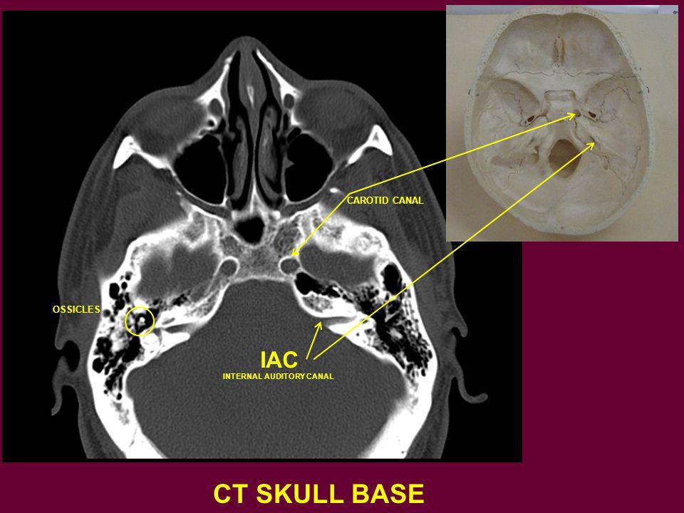 CT SKULL BASE IAC INTERNAL AUDITORY CANAL CAROTID CANAL OSSICLES