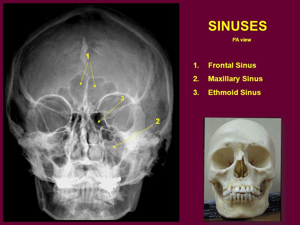 SINUSES PA view 1.Frontal Sinus 2.Maxillary Sinus 3.Ethmoid Sinus 1 3 2