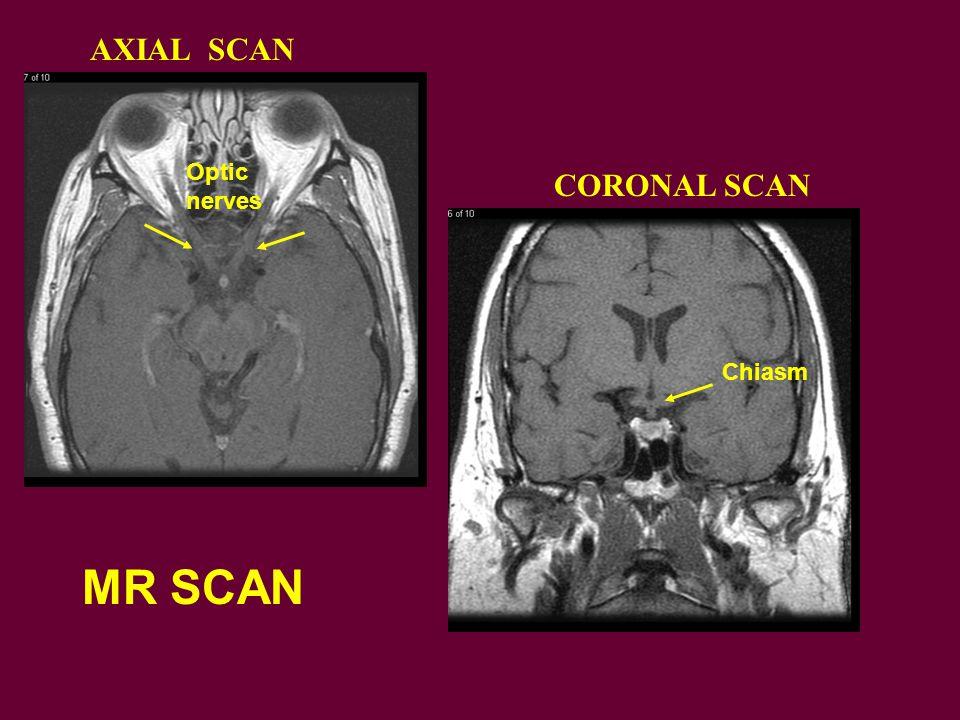 CORONAL SCAN AXIAL SCAN MR SCAN Chiasm Optic nerves