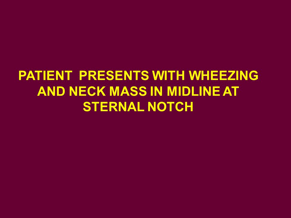 PATIENT PRESENTS WITH WHEEZING AND NECK MASS IN MIDLINE AT STERNAL NOTCH