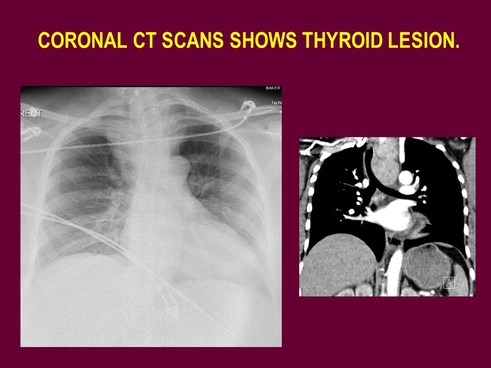 CORONAL CT SCANS SHOWS THYROID LESION.
