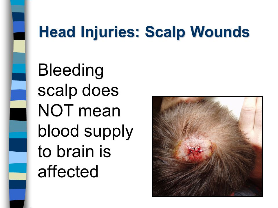 Head Injuries: Scalp Wounds Bleeding scalp does NOT mean blood supply to brain is affected