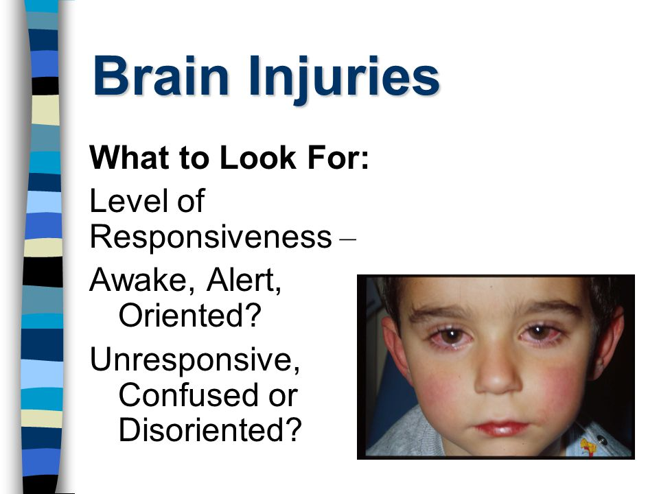 Brain Injuries What to Look For: Level of Responsiveness – Awake, Alert, Oriented.