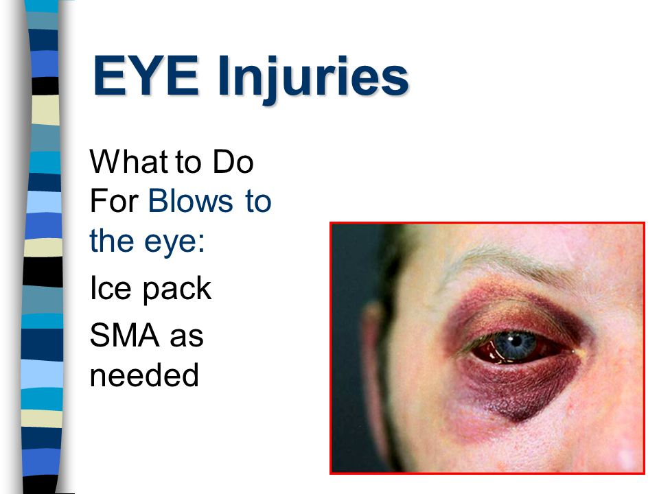 EYE Injuries What to Do For Blows to the eye: Ice pack SMA as needed