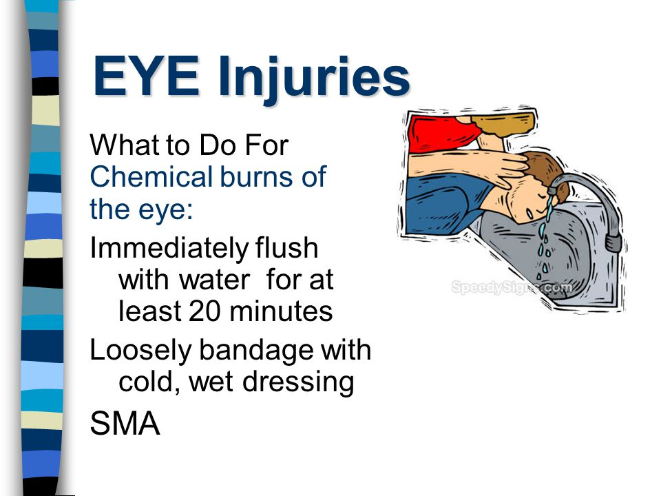EYE Injuries What to Do For Chemical burns of the eye: Immediately flush with water for at least 20 minutes Loosely bandage with cold, wet dressing SMA