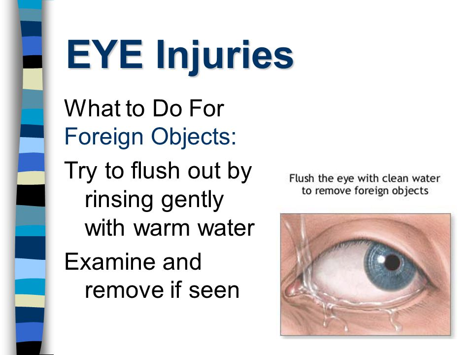EYE Injuries What to Do For Foreign Objects: Try to flush out by rinsing gently with warm water Examine and remove if seen