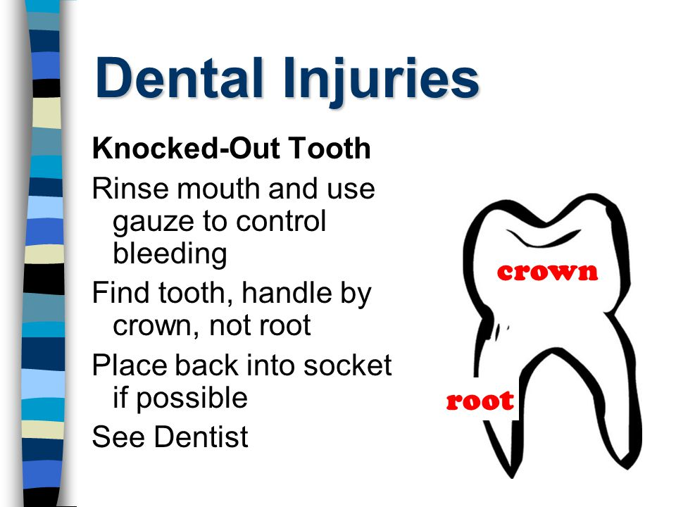 Dental Injuries Knocked-Out Tooth Rinse mouth and use gauze to control bleeding Find tooth, handle by crown, not root Place back into socket if possible See Dentist crown root
