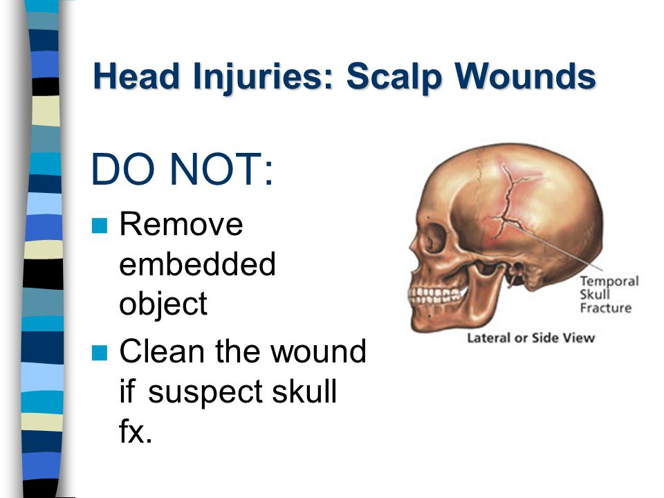 Head Injuries: Scalp Wounds DO NOT: Remove embedded object Clean the wound if suspect skull fx.
