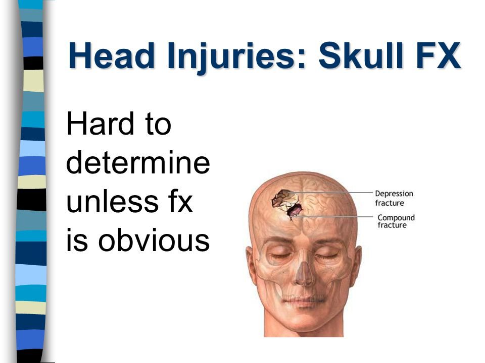 Head Injuries: Skull FX Signs: Pain at the point of injury Deformity of skull