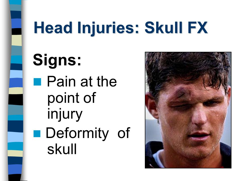 Head Injuries: Skull FX Signs: Bleeding from ears or nose
