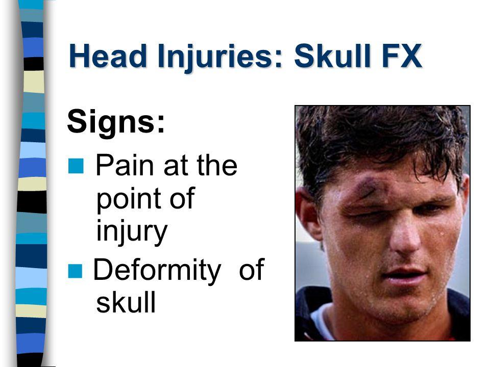 Brain Injuries NOT SURE.