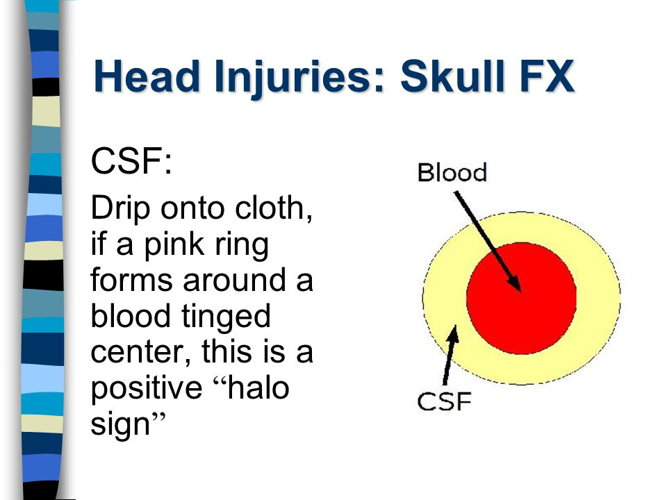 Head Injuries: Skull FX Signs: Discoloration around eyes several hours after injury Raccoon Eyes: