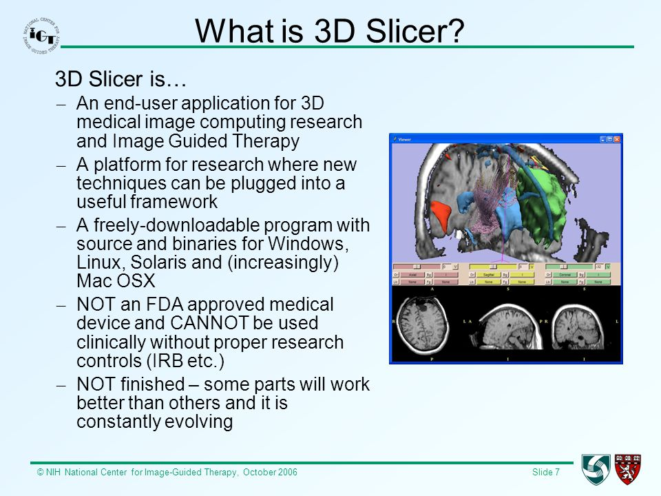 © NIH National Center for Image-Guided Therapy, October 2006 Slide 7 What is 3D Slicer? 3D Slicer is… – An end-user application for 3D medical image c