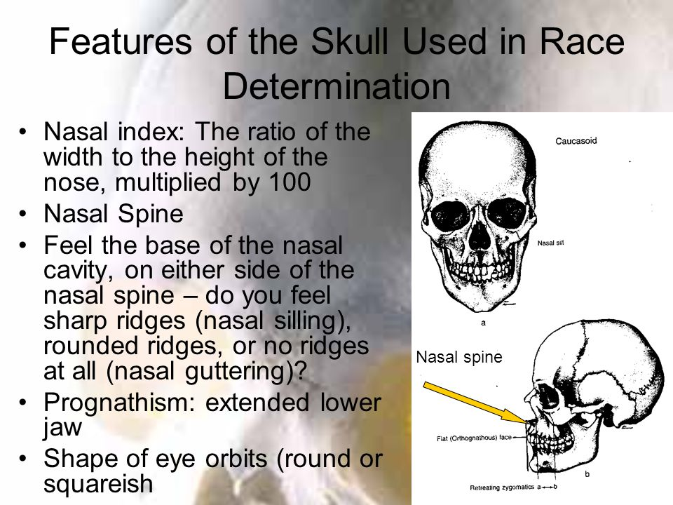 Features of the Skull Used in Race Determination Nasal index: The ratio of the width to the height of the nose, multiplied by 100 Nasal Spine Feel the base of the nasal cavity, on either side of the nasal spine – do you feel sharp ridges (nasal silling), rounded ridges, or no ridges at all (nasal guttering).