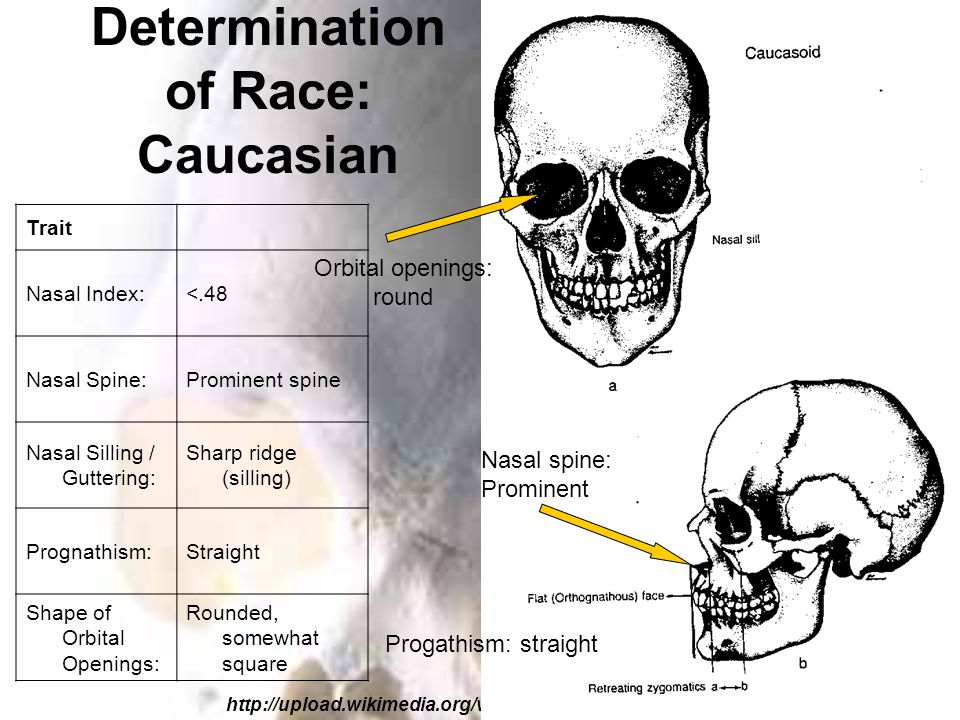 Determination of Race: Caucasian http://upload.wikimedia.org/wikipedia/en/c/cc/Skullcauc.gif Trait Nasal Index:<.48 Nasal Spine:Prominent spine Nasal Silling / Guttering: Sharp ridge (silling) Prognathism:Straight Shape of Orbital Openings: Rounded, somewhat square Nasal spine: Prominent Progathism: straight Orbital openings: round