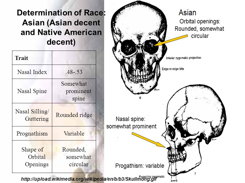 Determination of Race: Asian (Asian decent and Native American decent) http://upload.wikimedia.org/wikipedia/en/b/b3/Skullmong.gif Trait Nasal Index.48-.53 Nasal Spine Somewhat prominent spine Nasal Silling/ Guttering Rounded ridge PrognathismVariable Shape of Orbital Openings Rounded, somewhat circular