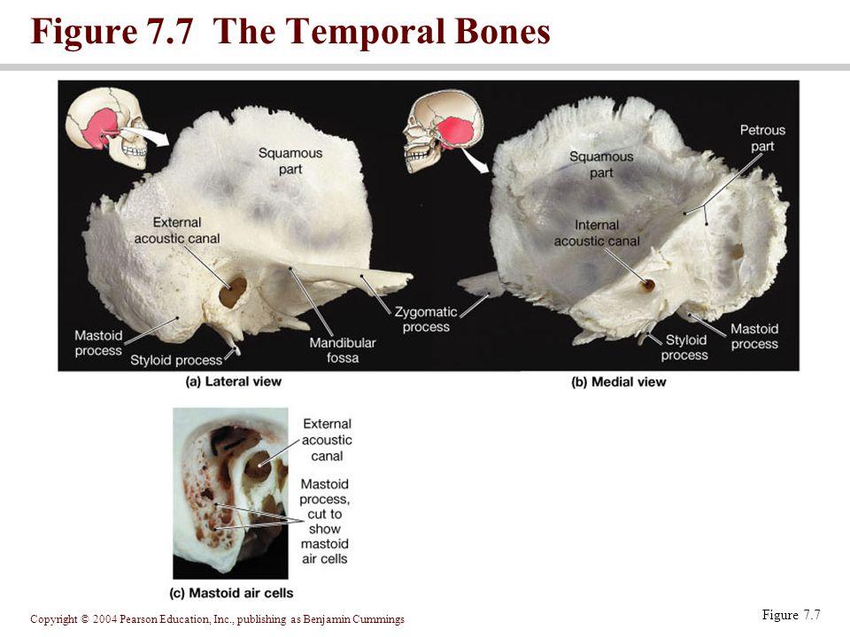 Copyright © 2004 Pearson Education, Inc., publishing as Benjamin Cummings Figure 7.8 The Sphenoid Figure 7.8