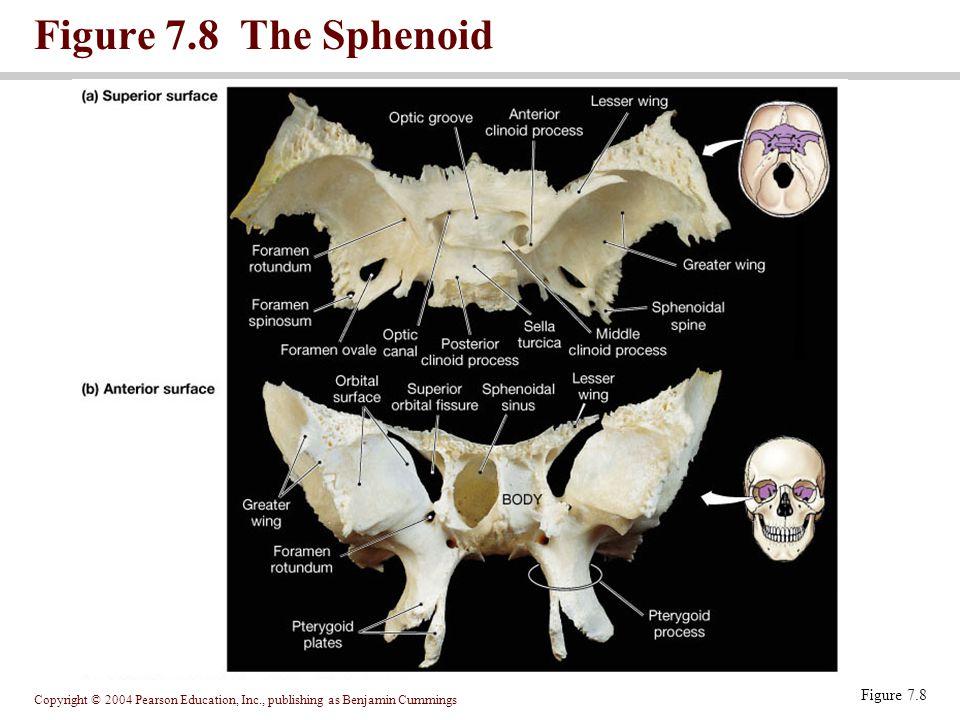 Copyright © 2004 Pearson Education, Inc., publishing as Benjamin Cummings Figure 7.9 The Ethmoid Figure 7.9
