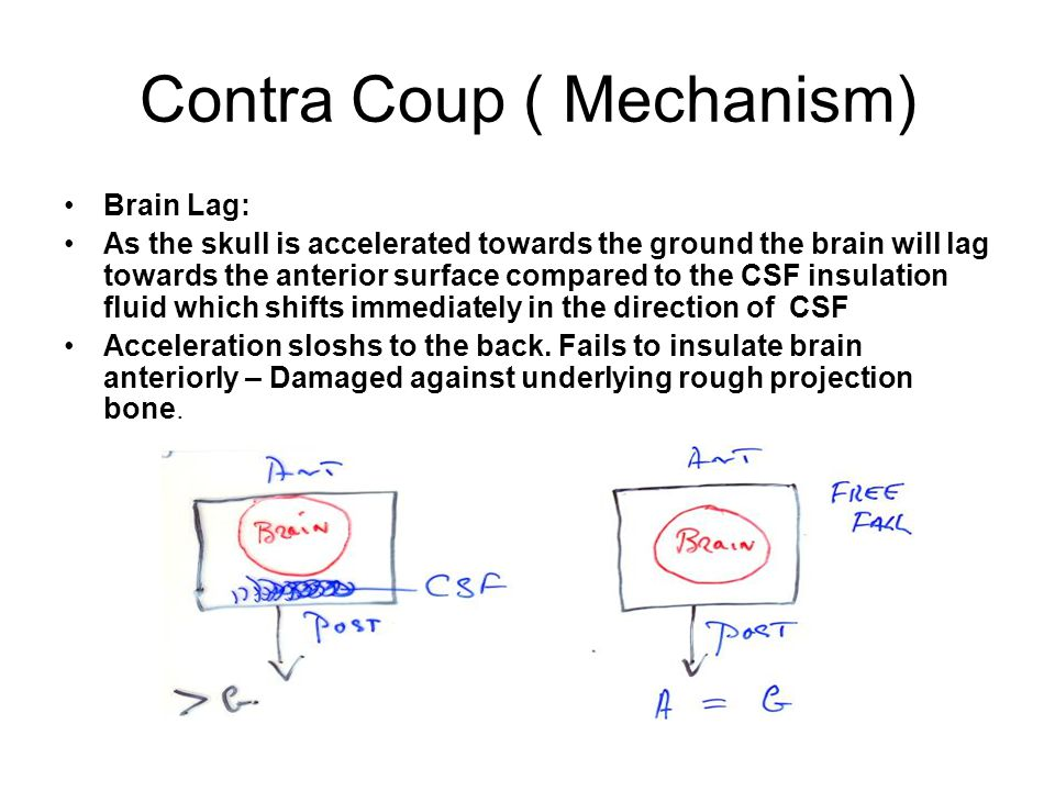 Contra Coup ( Mechanism) Brain Lag: As the skull is accelerated towards the ground the brain will lag towards the anterior surface compared to the CSF
