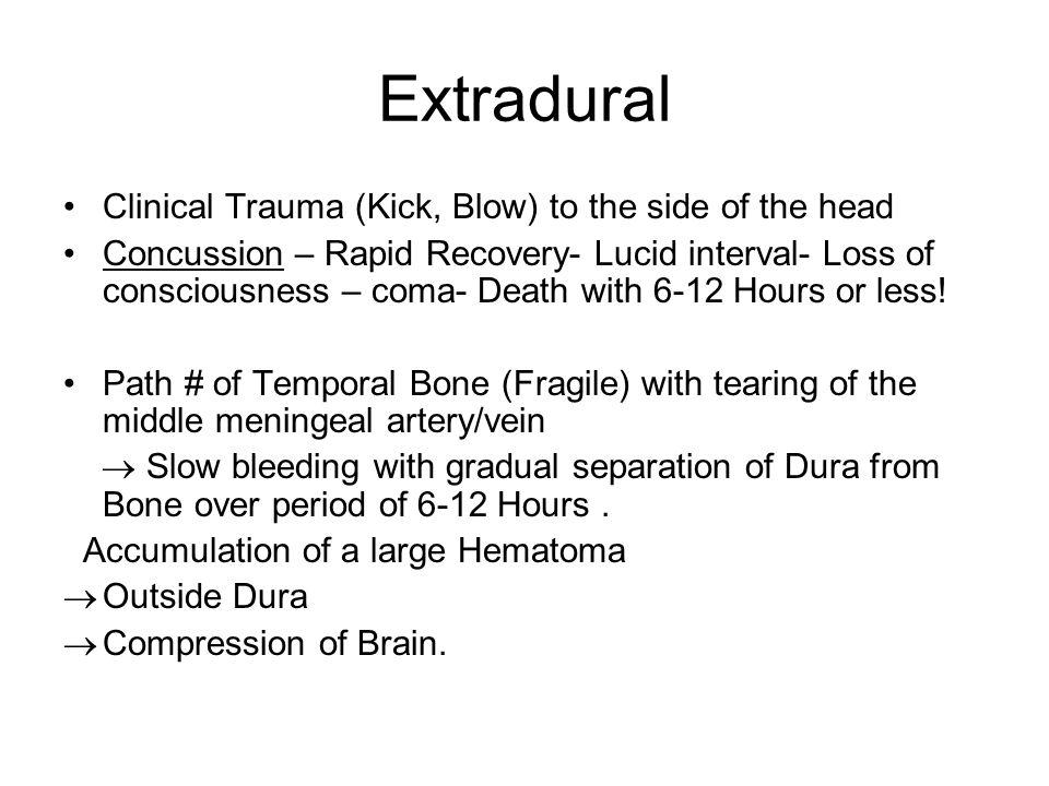 Subdural Clinical : Elderly Patient – Minor trauma (fall etc.) to head.