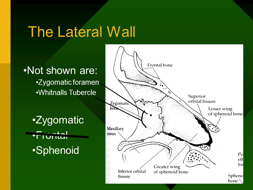 The Lateral Wall Not shown are: Zygomatic foramen Whitnalls Tubercle Zygomatic Frontal Sphenoid