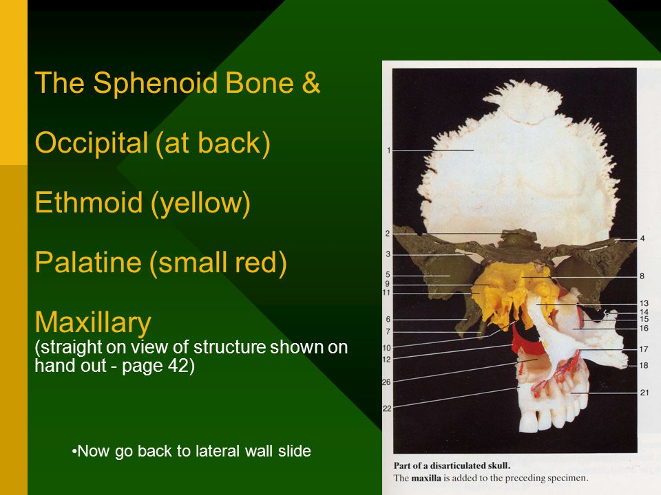 The Sphenoid Bone & Occipital (at back) Ethmoid (yellow) Palatine (small red) Maxillary (straight on view of structure shown on hand out - page 42) Now go back to lateral wall slide
