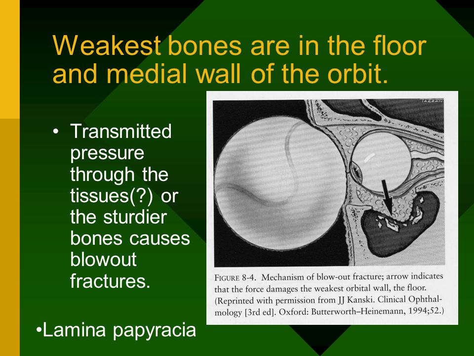 Weakest bones are in the floor and medial wall of the orbit.