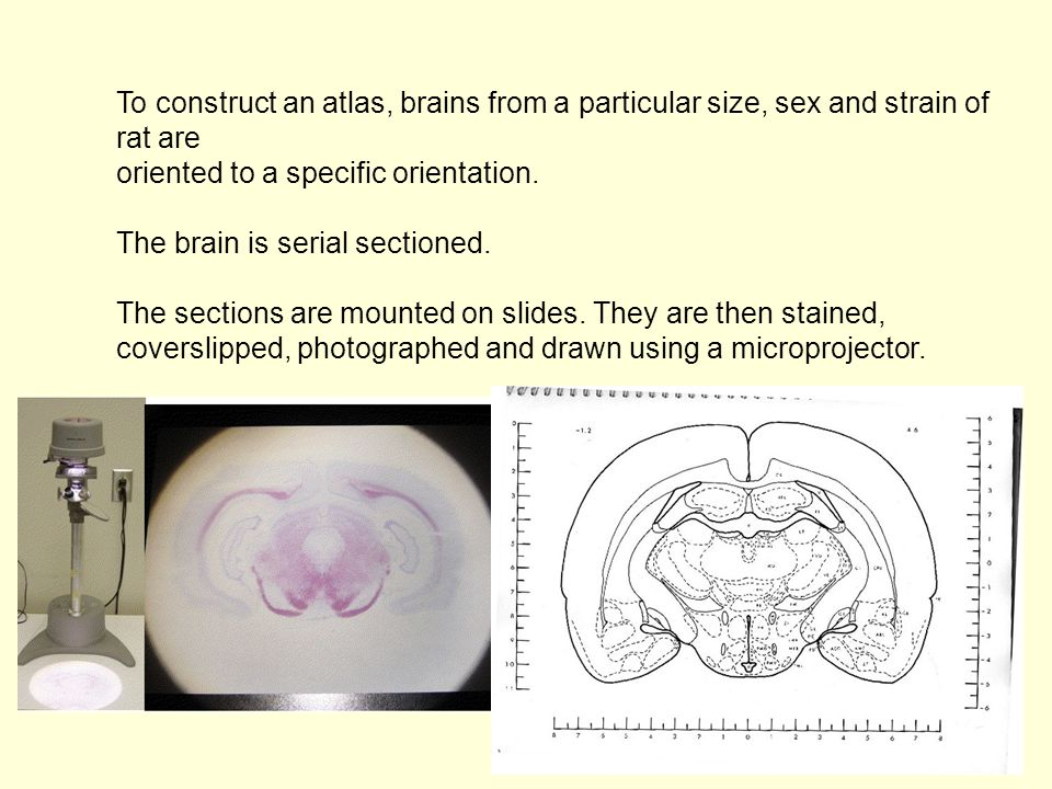 To construct an atlas, brains from a particular size, sex and strain of rat are oriented to a specific orientation. The brain is serial sectioned. The