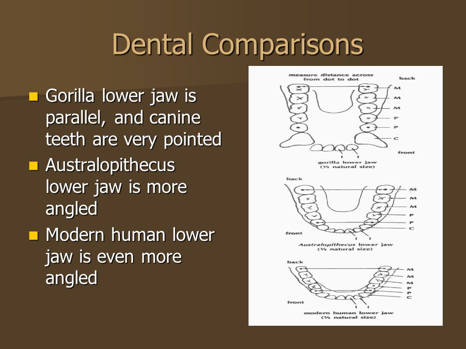Dental Comparisons Dental Comparisons Gorilla lower jaw is parallel, and canine teeth are very pointed Gorilla lower jaw is parallel, and canine teeth are very pointed Australopithecus lower jaw is more angled Australopithecus lower jaw is more angled Modern human lower jaw is even more angled Modern human lower jaw is even more angled