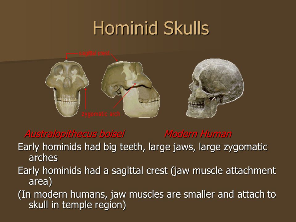 Hominid Skulls Hominid Skulls Australopithecus boisei Modern Human Australopithecus boisei Modern Human Early hominids had big teeth, large jaws, large zygomatic arches Early hominids had a sagittal crest (jaw muscle attachment area) (In modern humans, jaw muscles are smaller and attach to skull in temple region)