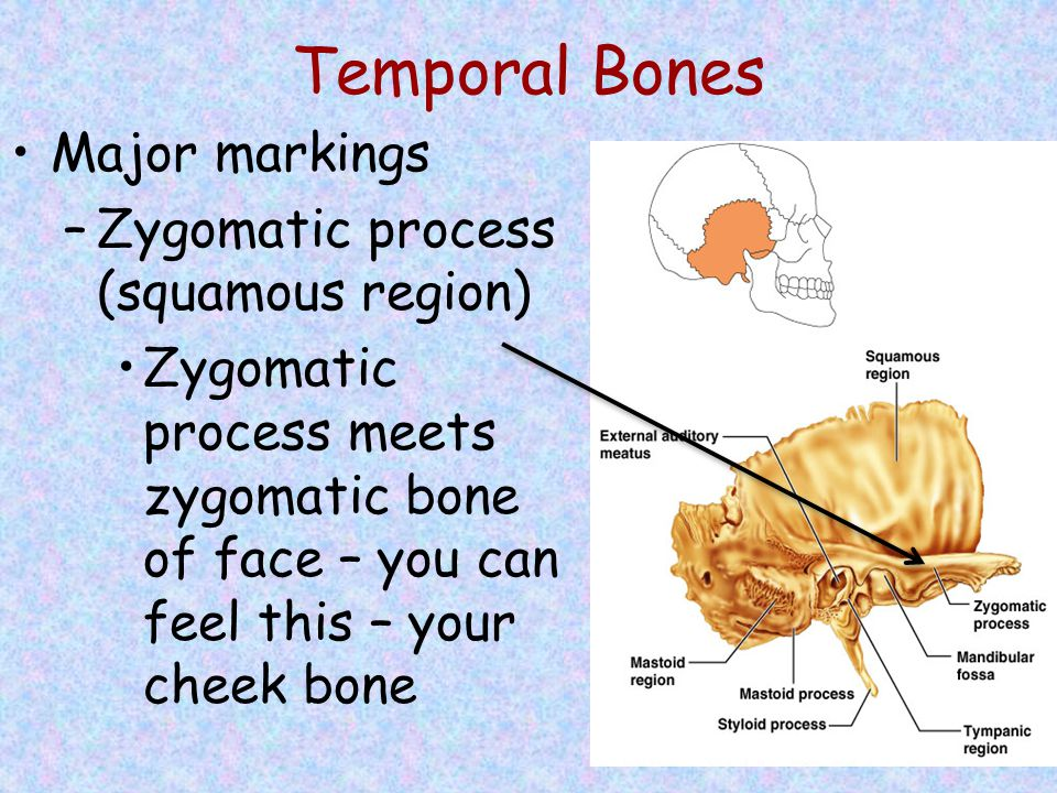 Temporal Bones Major markings –Zygomatic process (squamous region) Zygomatic process meets zygomatic bone of face – you can feel this – your cheek bon