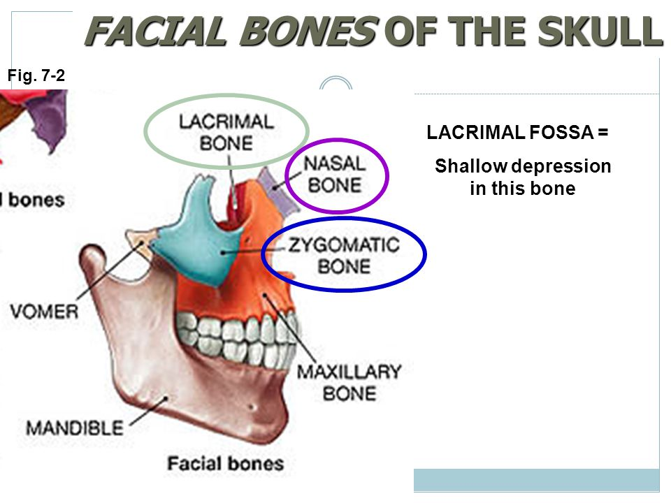 Fig. 7-2 FACIAL BONES OF THE SKULL LACRIMAL FOSSA = Shallow depression in this bone