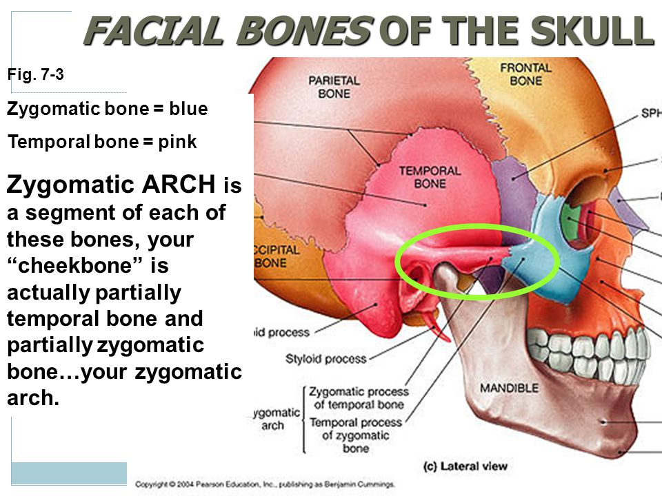 "Fig. 7-3 FACIAL BONES OF THE SKULL Zygomatic bone = blue Temporal bone = pink Zygomatic ARCH is a segment of each of these bones, your ""cheekbone"" is"