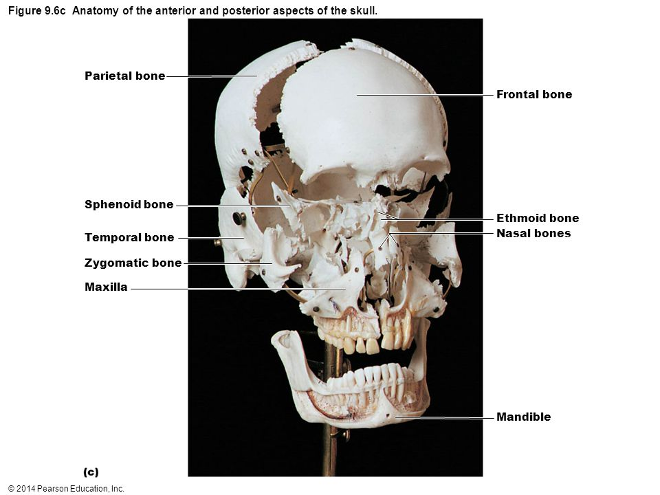 © 2014 Pearson Education, Inc. Figure 9.6c Anatomy of the anterior and posterior aspects of the skull. Parietal bone Sphenoid bone Temporal bone Zygom