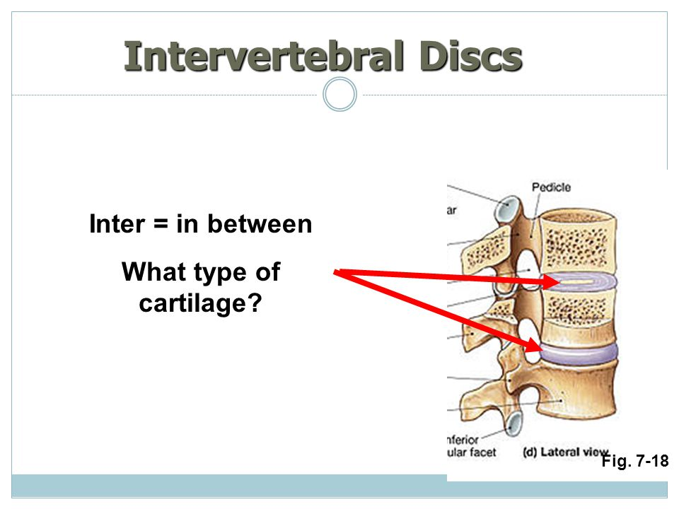 Intervertebral Discs Inter = in between What type of cartilage? Fig. 7-18
