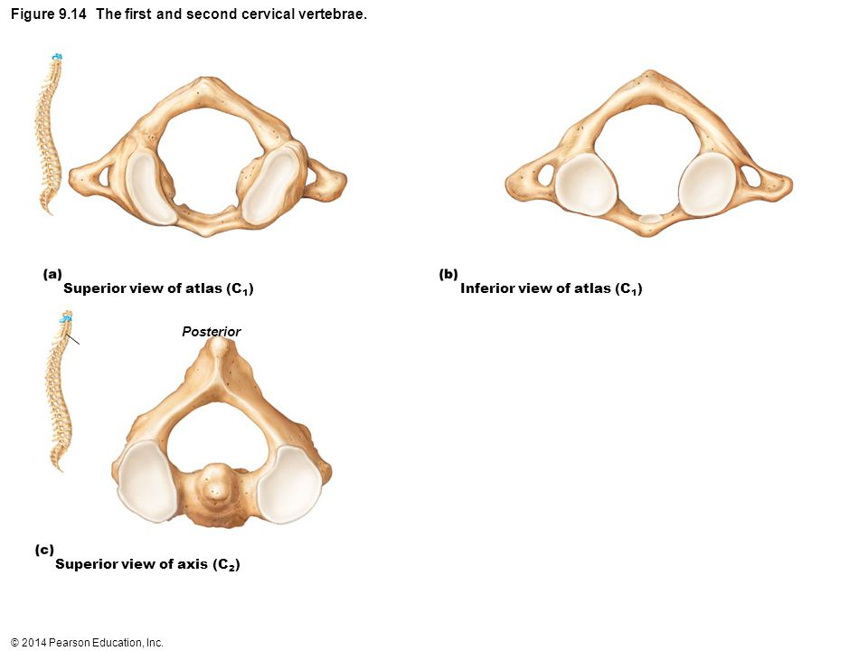 © 2014 Pearson Education, Inc. Figure 9.14 The first and second cervical vertebrae. Superior view of atlas (C 1 ) Inferior view of atlas (C 1 ) Superi