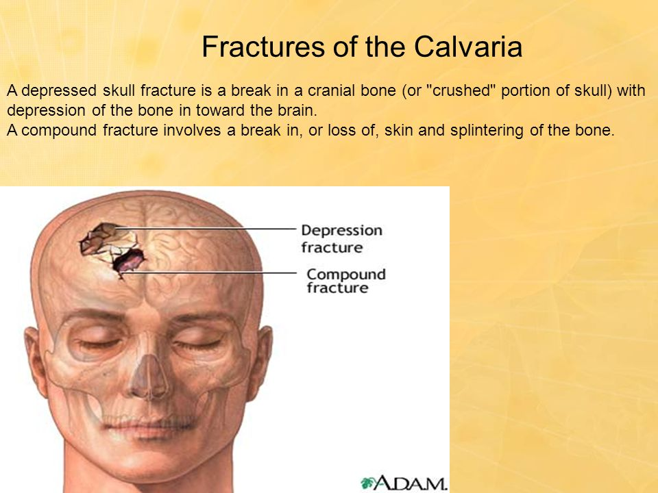 Fractures of the Calvaria A depressed skull fracture is a break in a cranial bone (or
