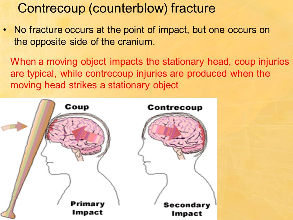 Contrecoup (counterblow) fracture No fracture occurs at the point of impact, but one occurs on the opposite side of the cranium. When a moving object