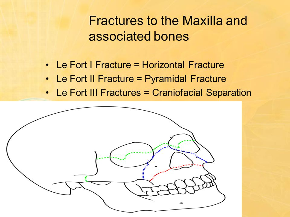 Fractures to the Maxilla and associated bones Le Fort I Fracture = Horizontal Fracture Le Fort II Fracture = Pyramidal Fracture Le Fort III Fractures