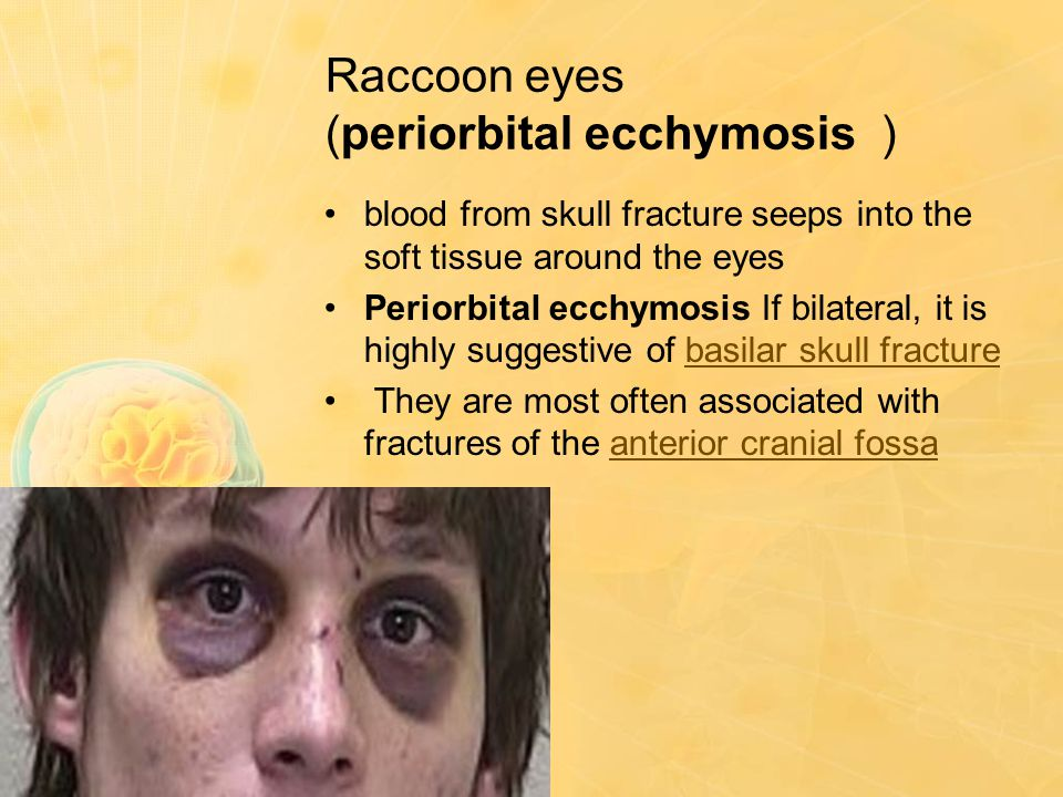 Raccoon eyes (periorbital ecchymosis ) blood from skull fracture seeps into the soft tissue around the eyes Periorbital ecchymosis If bilateral, it is