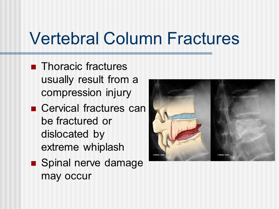 Vertebral Column Fractures Thoracic fractures usually result from a compression injury Cervical fractures can be fractured or dislocated by extreme wh